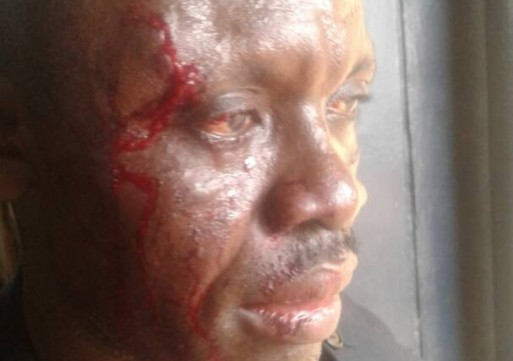 Soldiers on rampage: 7 police officers injured in Tamale
